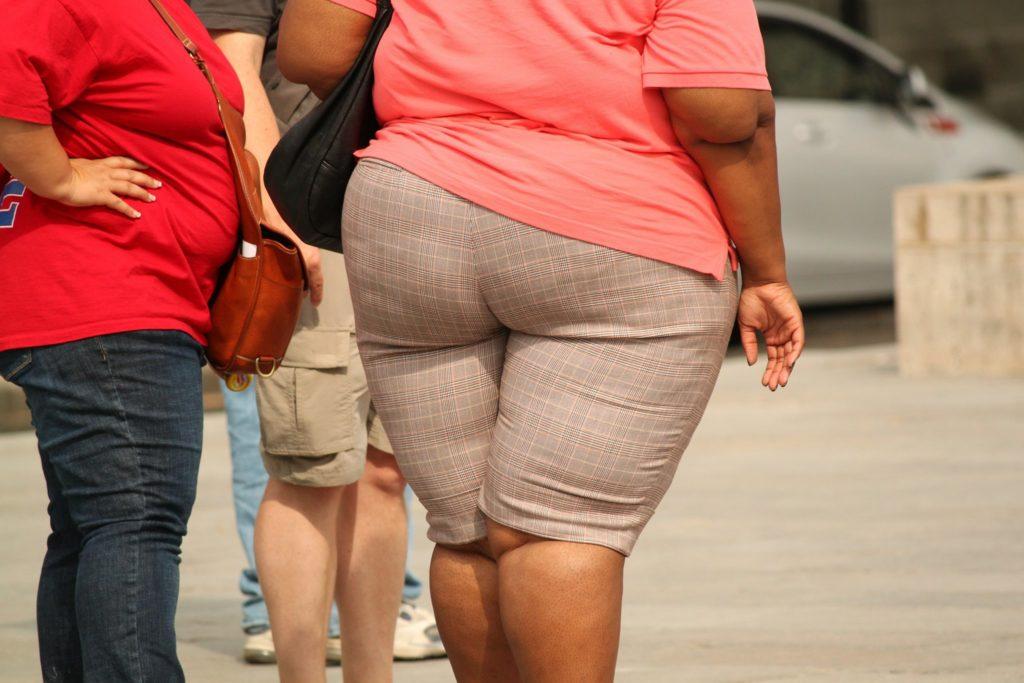 Il sovrappeso.